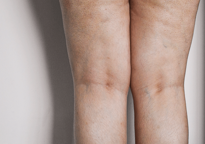 Everything you need to know about cellulite on thigh